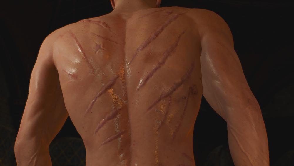 傷だらけのゲラルト - Witcher 3