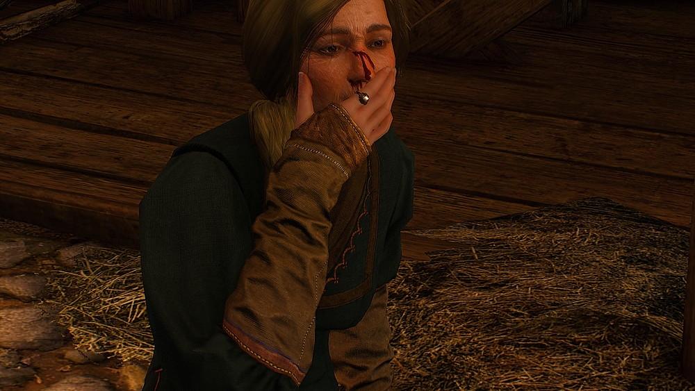 顔から血を流す宿屋の女主人 - Withcer 3